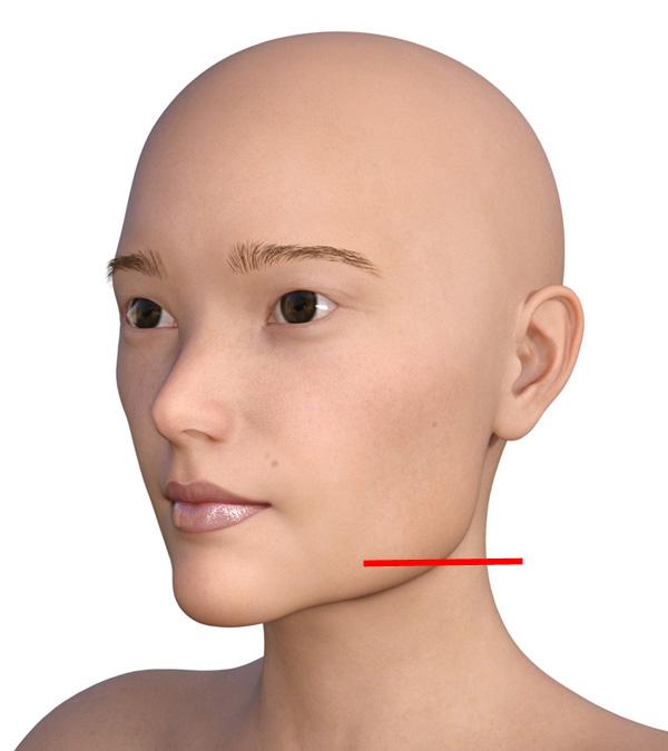 横顔のエラが目立つ2000-1-1